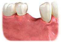 p_implantoption1