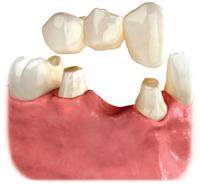 p_implantoption2