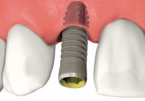 shema_implant1