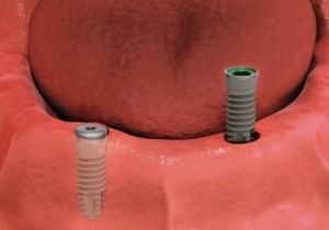shema_implant7-300x210