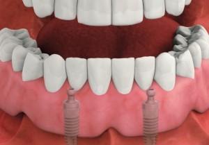 shema_implant8-300x209