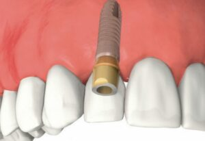 shema_implant2-1024x723